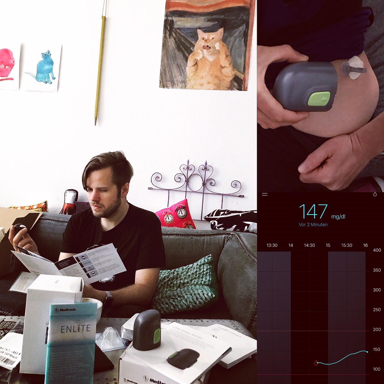 Enlite-Sensor setzen (Guardian Connect)