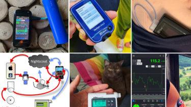 Insulinpumpen und CGM-Systeme im Vergleich